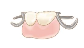 保険の部分入れ歯